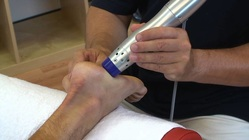 What expect Shock wave therapy